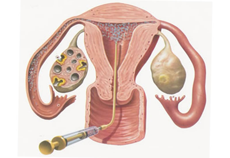 artificial insemination The basics of artificial insemination artificial insemination is the process of inserting sperm directly into the woman's cervix or uterus using a device if you choose to undergo artificial insemination.